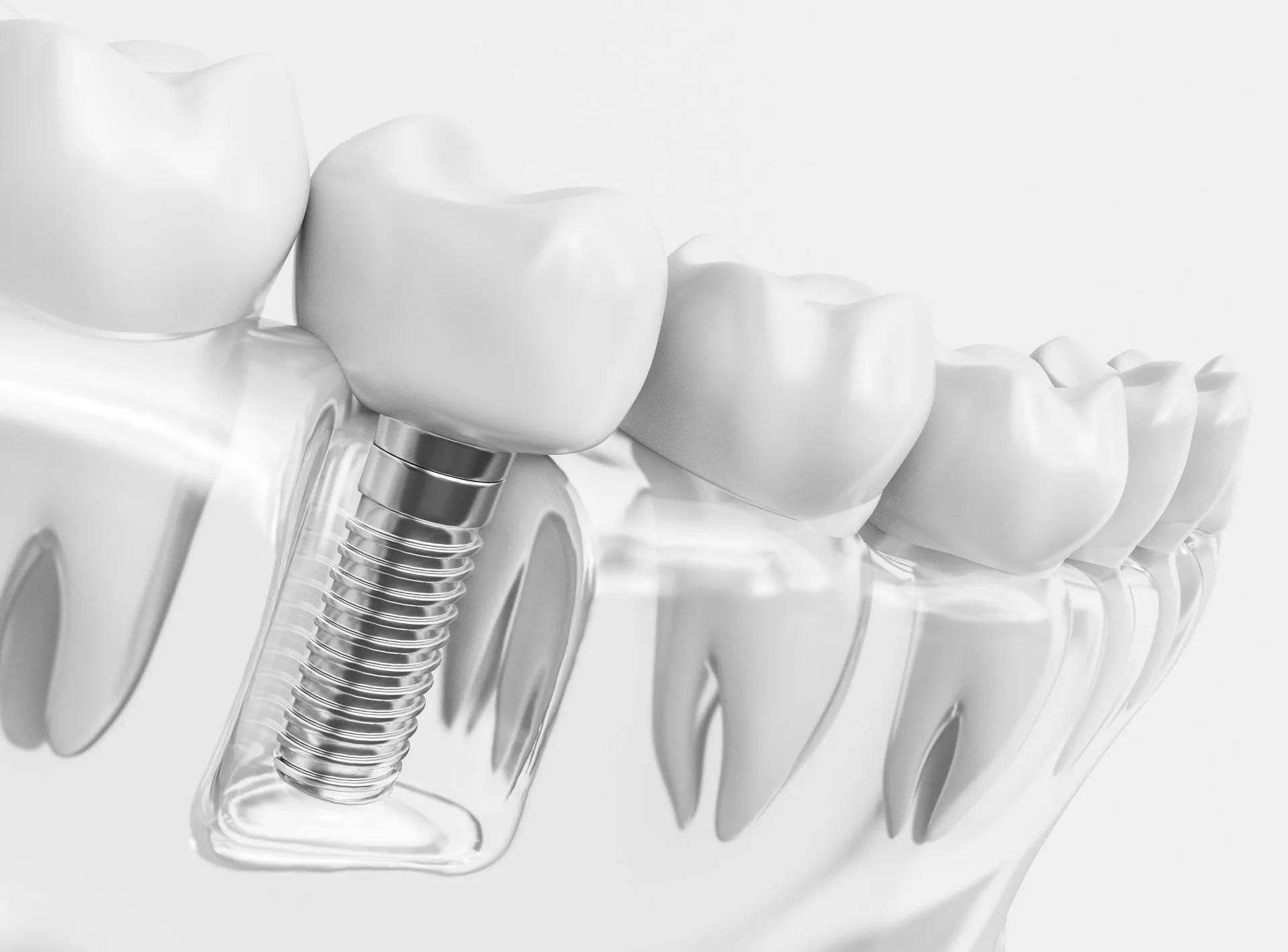 Dental Implants or Dentures: The Benefits of Implants