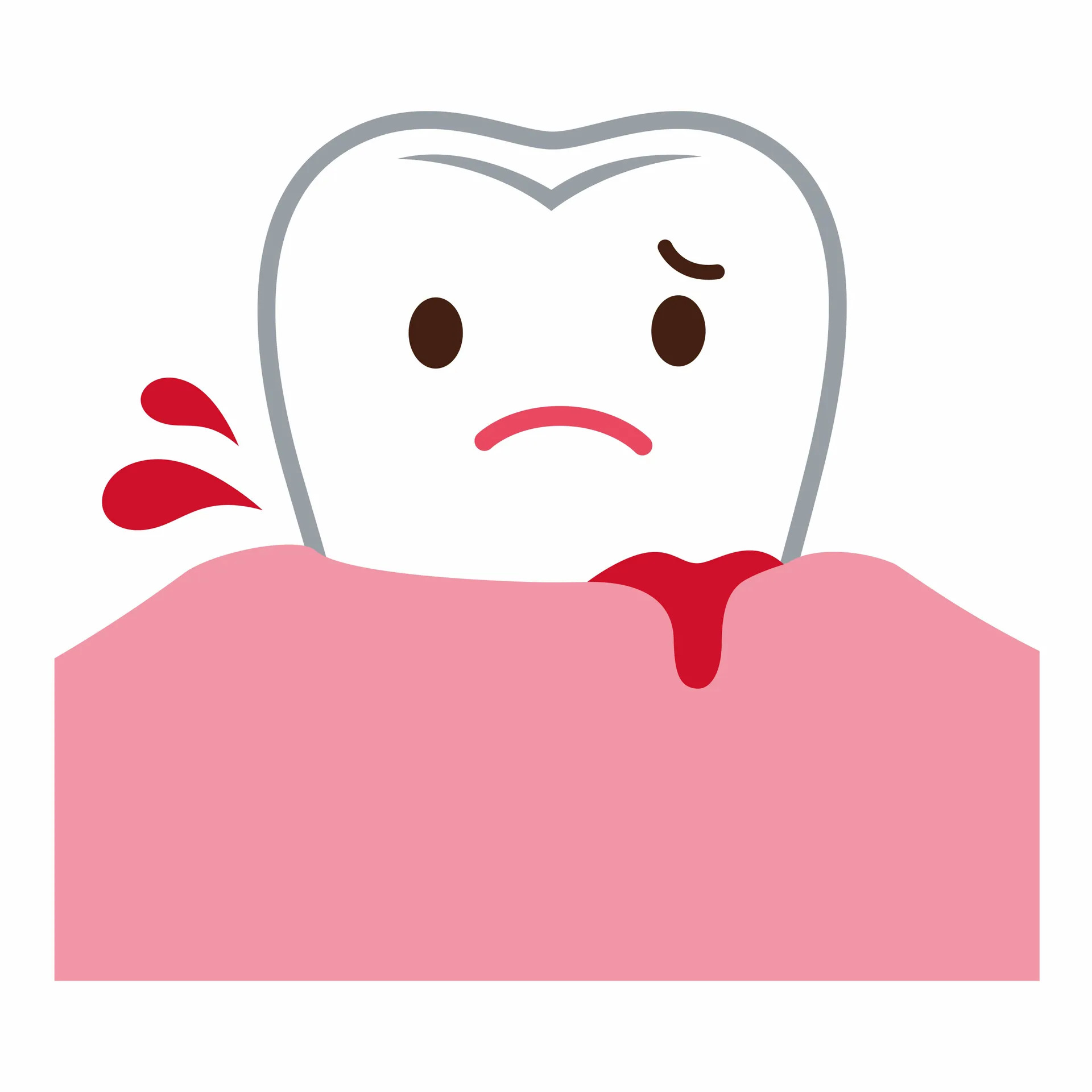 Are Bleeding Gums Getting You Down?