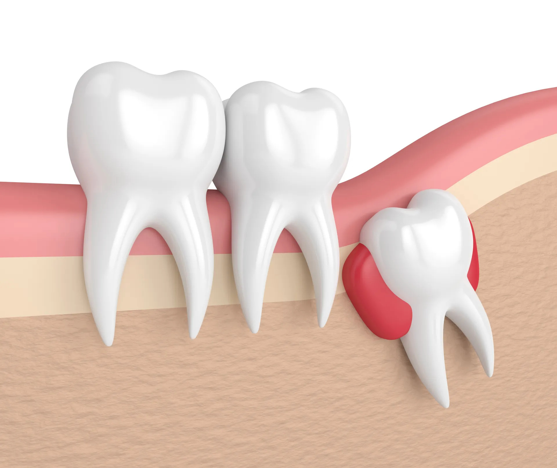 Dealing With Impacted Wisdom Teeth