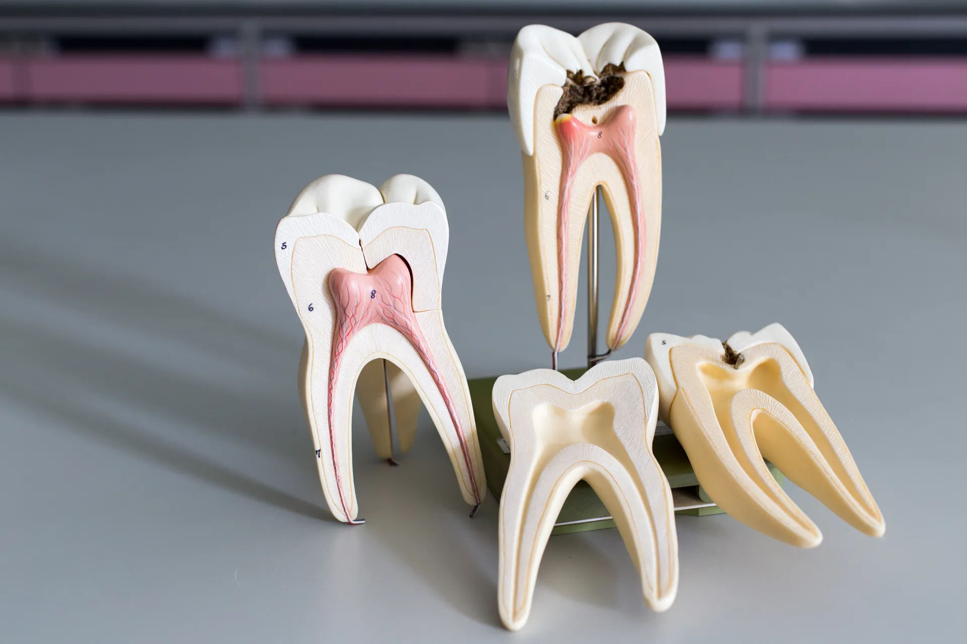 Main Causes for a Root Canal Being Needed