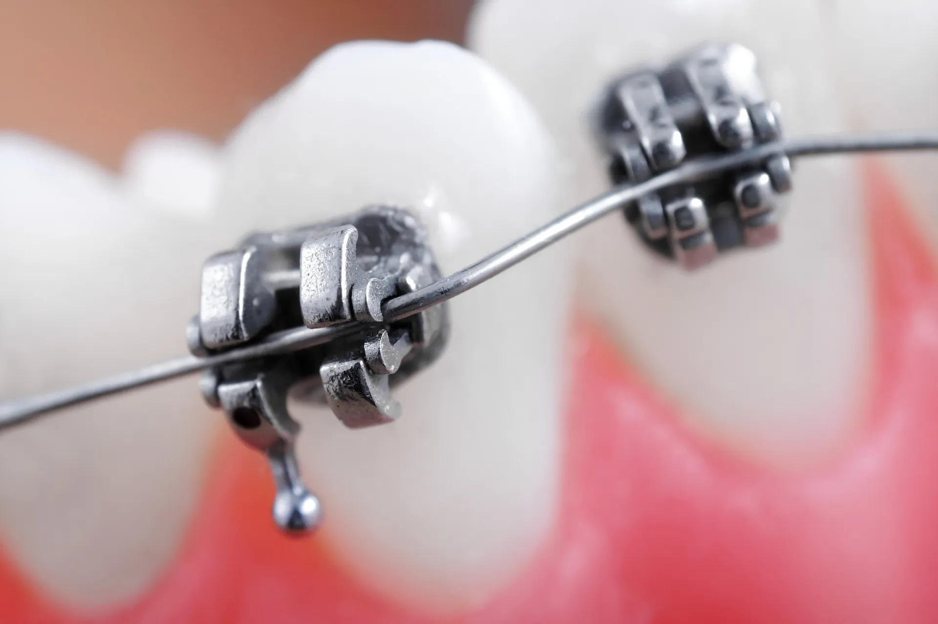 4 Signs That Your Child Could Benefit From Braces