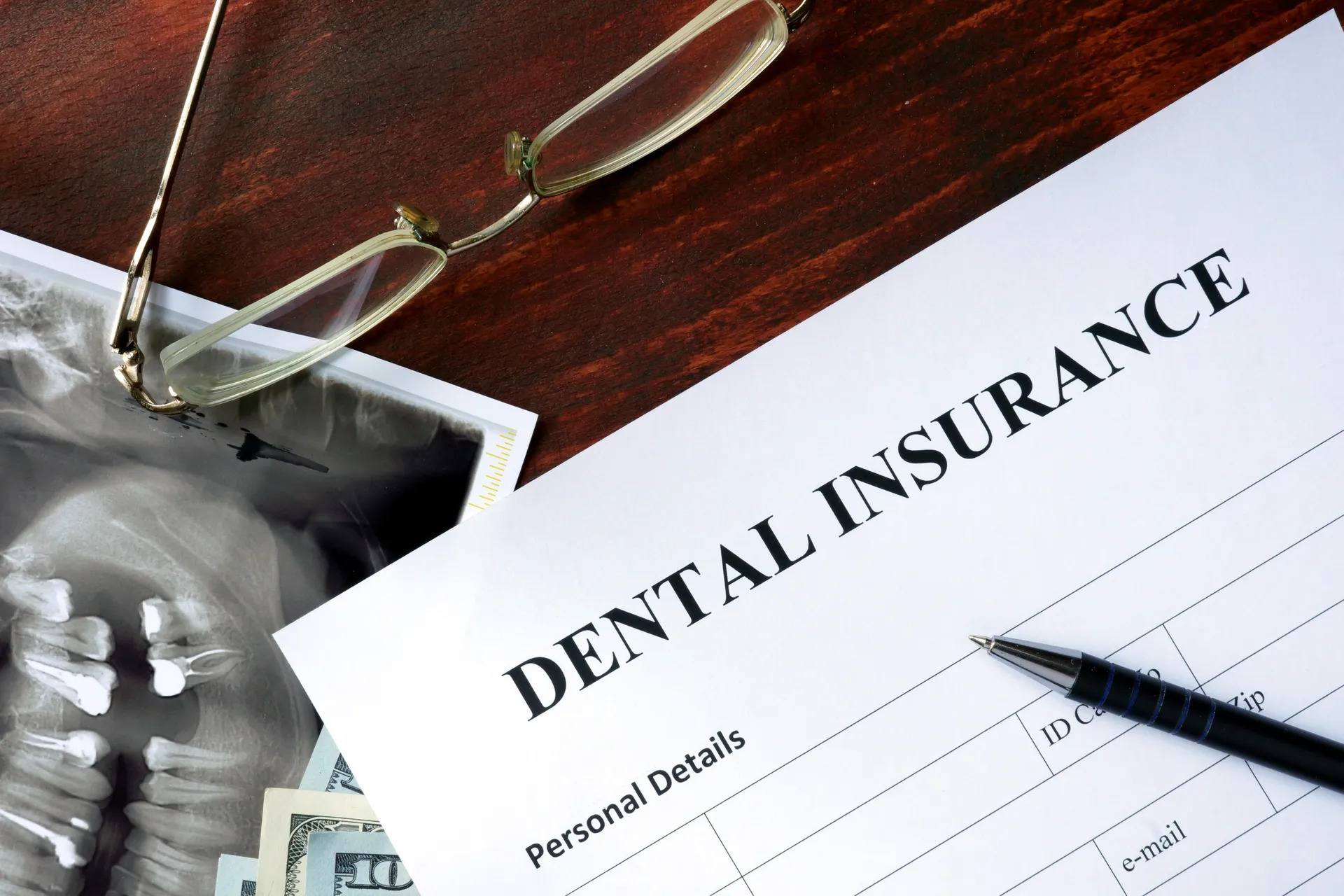 Dental Insurance: What is Covered?